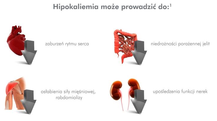 Potas w koronie, czyli dlaczego warto dbać o prawidłowe stężenie potasu w dobie koronawirusa
